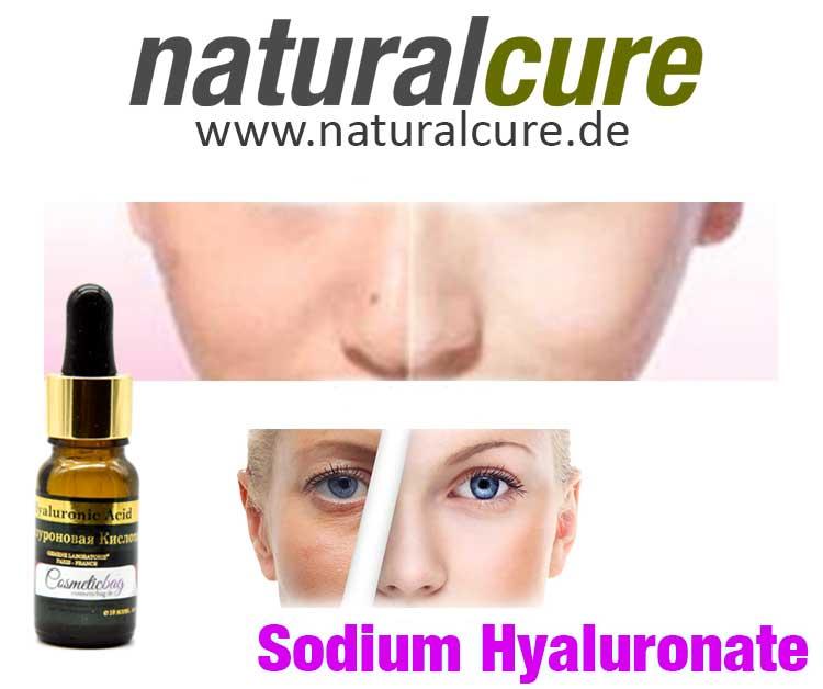 Hyaluron Hyaluronsäure Hyaluron-Acid